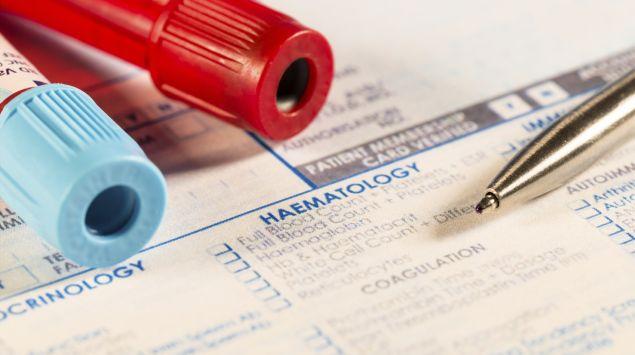 Man sieht zwei Röhrchen für Blutproben und einen Auftragszettel für Blutuntersuchungen.
