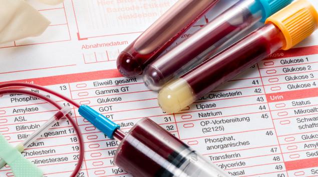 Bilirubin ist im Blut nachweisbar. Bei bestimmten Erkrankungen steigt auch der Bilirubin-Wert im Urin.