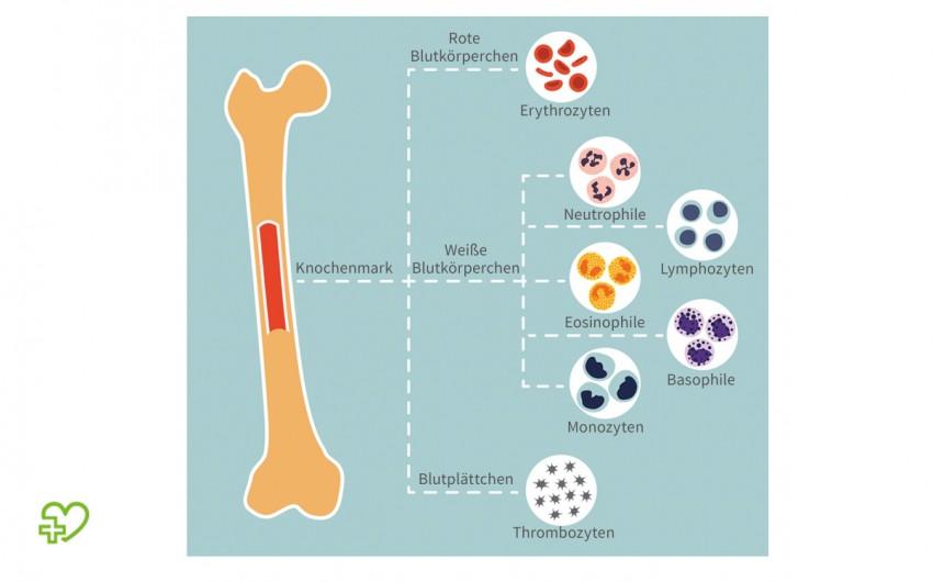 Leukämie: Blutzellenbildung, Knochenmark, Leukozyten, Erythrozyten, Thrombozyten