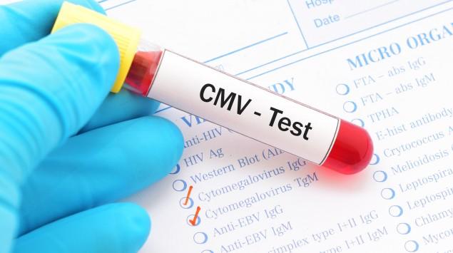 Jemand hält ein Teströhrchen mit roter Flüssigkeit und der Aufschrift CMV.