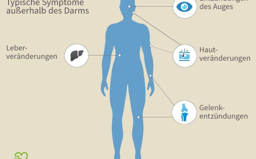 Colitis ulcerosa kann auch außerhalb des Darms zu entzündlichen Veränderungen führen.