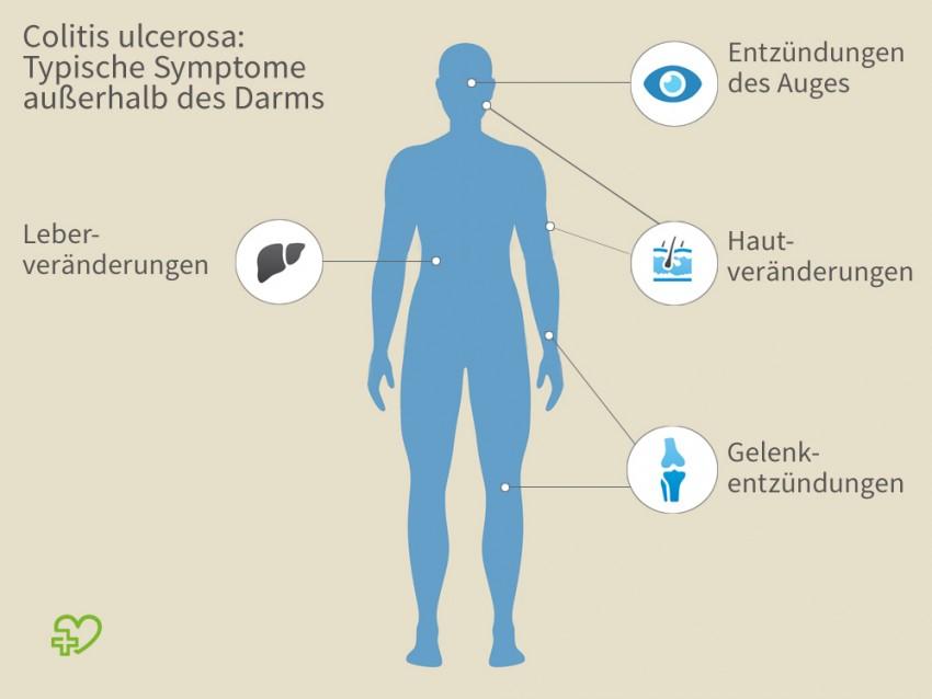 zäpfchen gegen darmentzündung