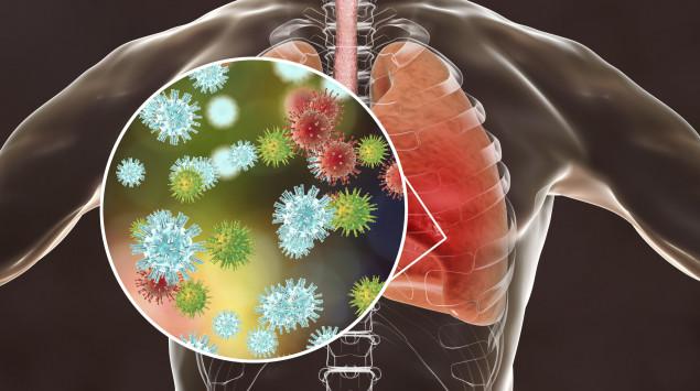 coronavirus, lungenerkrankung