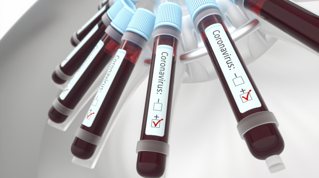 Blutproben zum Test für Coronavirus