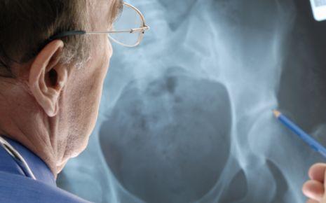 Die Röntgenuntersuchung ist die wichtigste Untersuchung bei der Diagnose einer Arthrose.