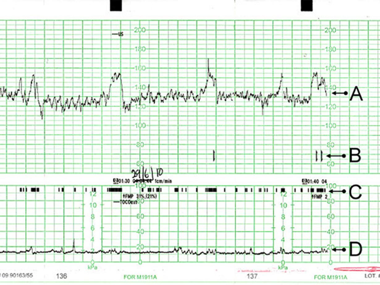 Das Bild zeigt eine normale Kurve bei einer CTG-Messung.
