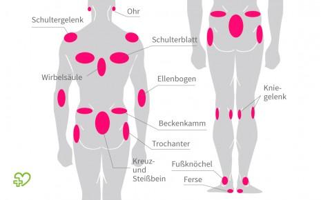 Körperregionen mit erhöhtem Dekubitus-Risiko: Ein Druckgeschwür kann sich vor allem dort bilden, wo die Haut direkt am Knochen aufliegt.