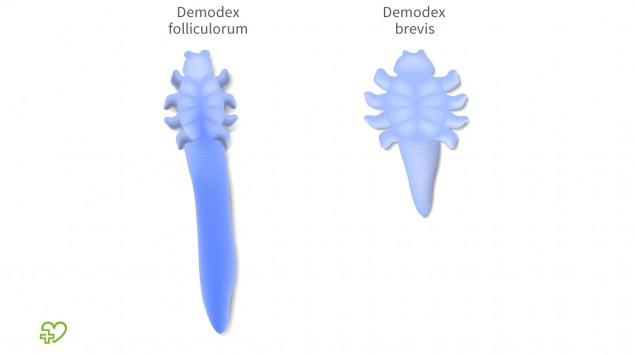 Man sieht eine grafische Darstellung der Haarbalgmilben (Demodex).