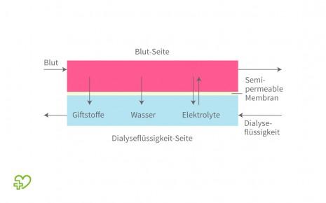 Darstellung der Dialyse.