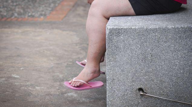Das Bild zeigt die Beine einer übergewichtigen Frau.