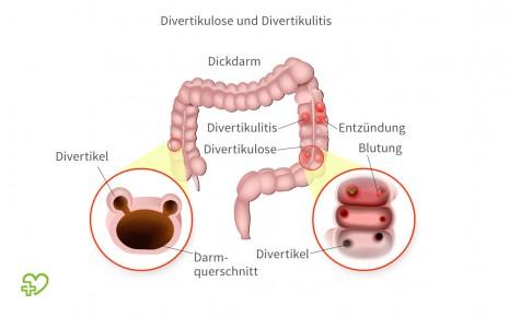 Grafische Darstellung von Divertikulose und Divertikulose