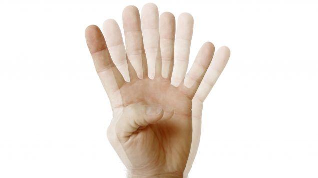 Doppeltsehen: Eine Hand mit vier Fingern.