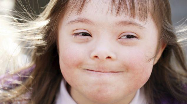 Man sieht ein Mädchen mit Down-Syndrom.