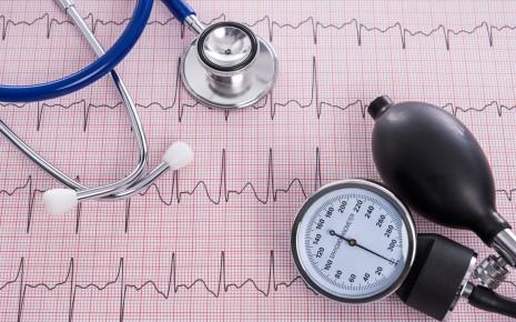 Ein EKG gehört zur Standarduntersuchung bei Verdacht auf Herzrhythmusstörungen.