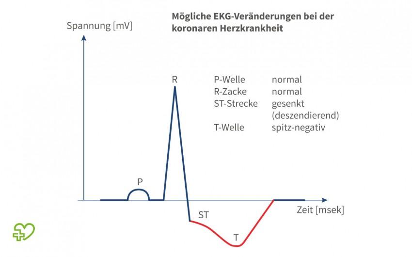 Illustration: Mögliche EKG-Veränderungen bei der koronaren Herzkrankheit