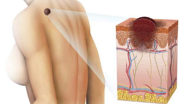 Grafische Darstellung eines erhabenen Melanoms im hinteren Schulterbereich.