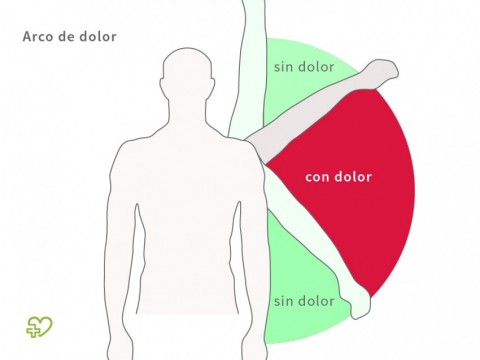 Causas del hombro congelado