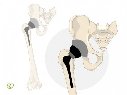 Articulación artificial de cadera (artroplastia de cadera) - Onmeda.es