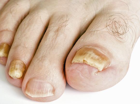 Los preparados del ungüento del hongo de los pies