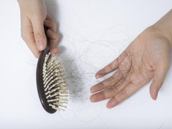 Resultado de imagen de caida del cabello
