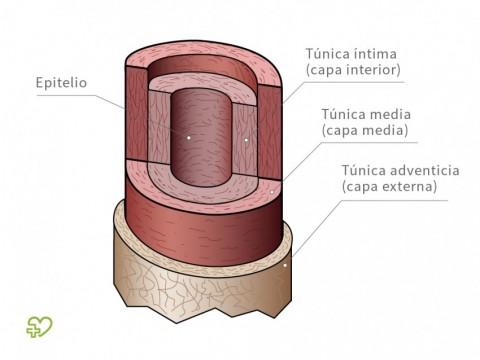 Arteriosclerosis - Onmeda.es