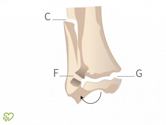 luxacion de tobillo derecho cie 10