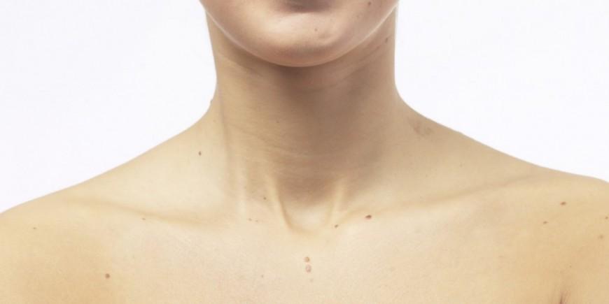 De en la tiroides del cuello sensación ardor