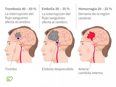 Ictus (Infarto cerebral) - Onmeda.es