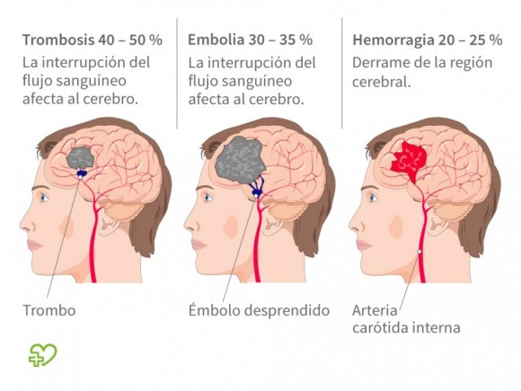 Resultado de imagen de derrame cerebral
