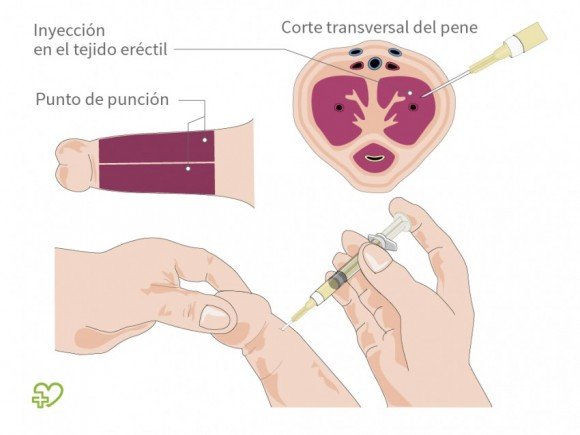 inyecciones peneanas para ereccion