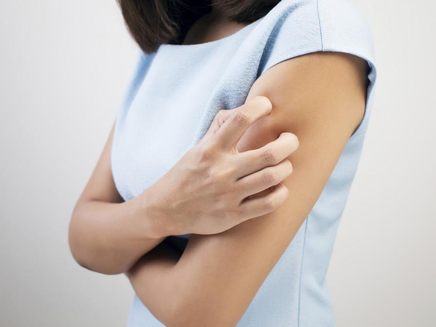 Urticaria afecta el higado