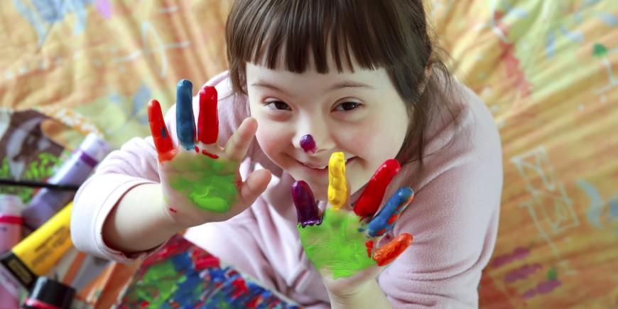 Image result for imagen niño discapacitado