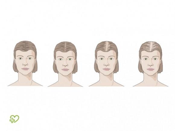 El aceite para los cabellos keratinovoe la reconstitución