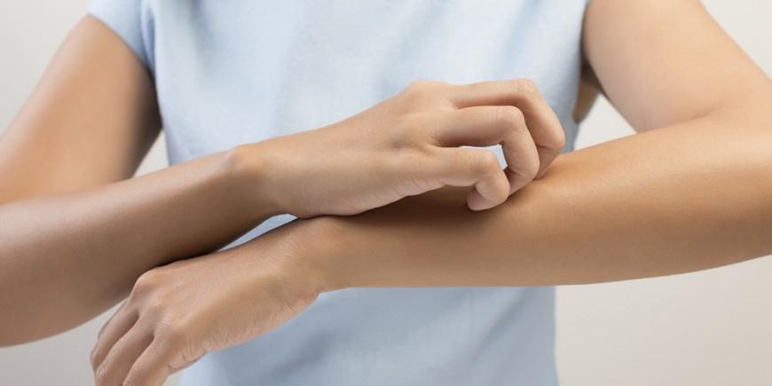 Cancer y picor en la piel