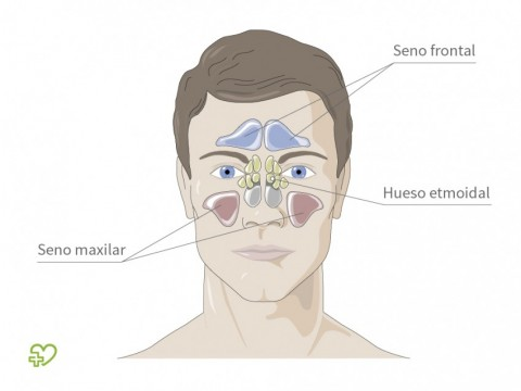Sinusitis Definición: Incidencia - Onmeda.es