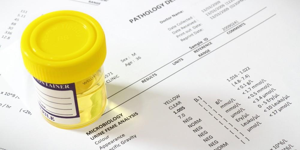 que medicamento es bueno para bajar el acido urico tratamiento de acido urico natural remedio para calmar la gota