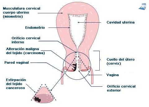 Tratamiento del cáncer de cuello de útero - Onmeda.es