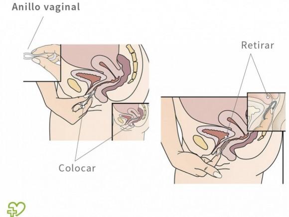 como insertar el pene en la vagina