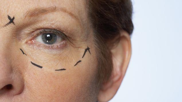 Teil eines Frauengesichts mit eingezeichneten Facelift-Marken
