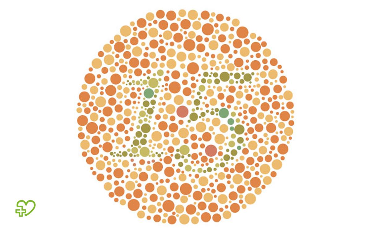 Anhand von Farbtafeln kann der Arzt zum Beispiel eine Rot-Grün-Schwäche erkennen.