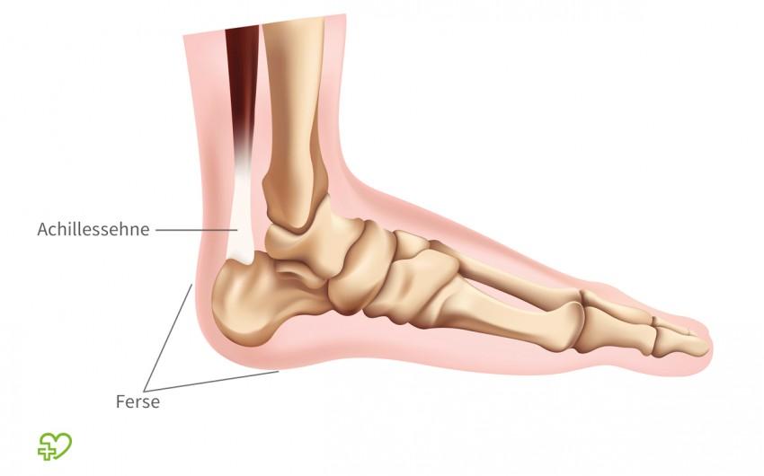 Fersenschmerzen: Man sieht eine anatomische Darstellung des Fußes.