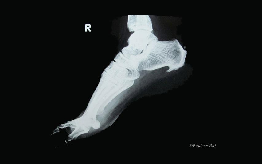 Das Bild zeigt ein Röntgenbild eines Fersensporns.