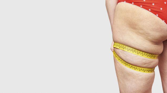 Können wir erkennen, reduziert Fett