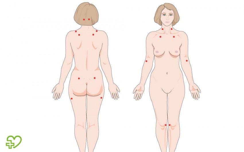 Schmerz-Druckpunkte (Tender Points) bei Fibromyalgie