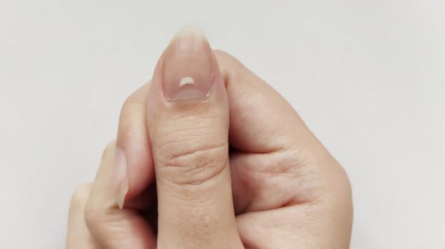 Eine Damenhand mit weißen Flecken auf dem Daumennnagel