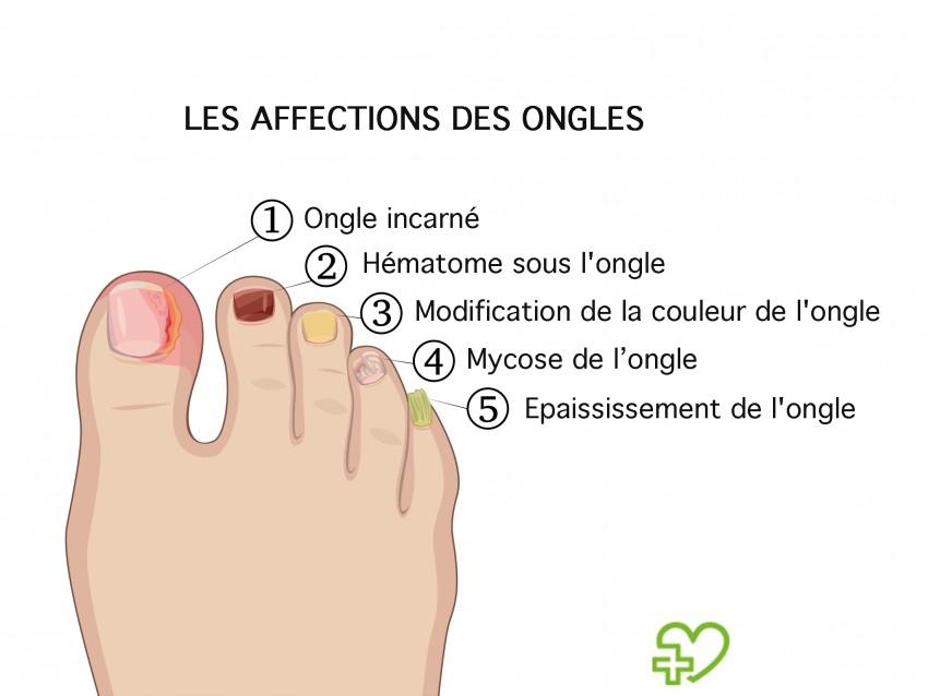 mycose sous ongle pied