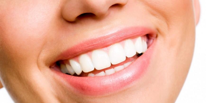 Test sur les soins dentaires - Onmeda.fr 228ae9cfb08d
