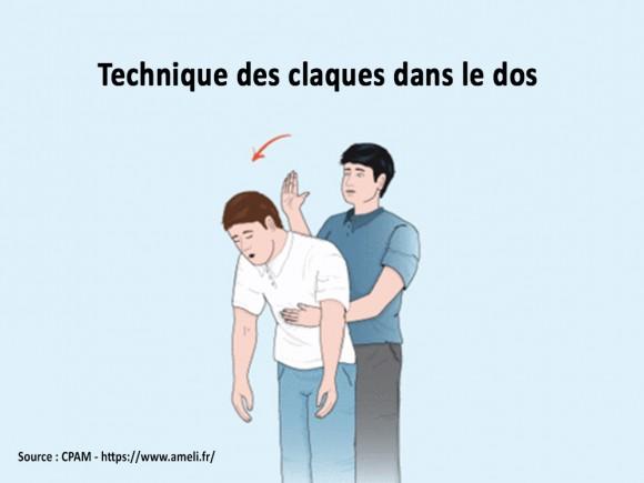 Fausse route : technique des claques dans le dos