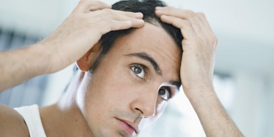 Perte cheveux femme qui consulter