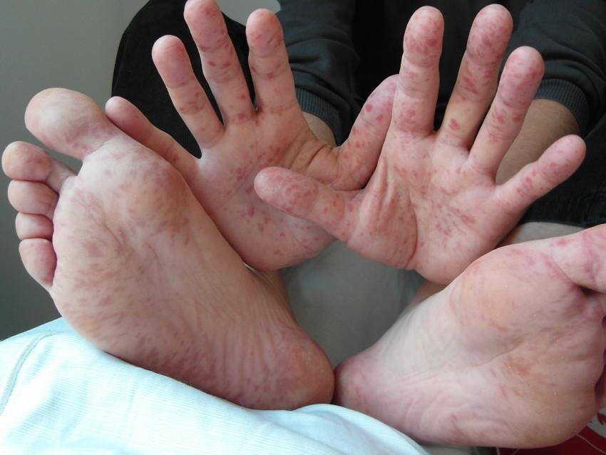 maladie pied main bouche image